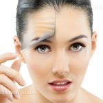 brow-lift-and-forehead