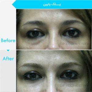eyelid-surgery-1001