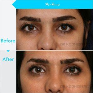 eyelid-surgery-101