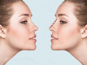 What is Cosmetic Nose Surgery?